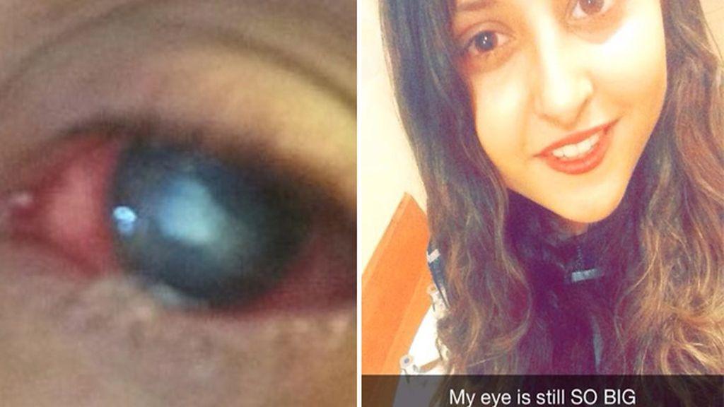 Un parásito se come la córnea del ojo de una estudiante