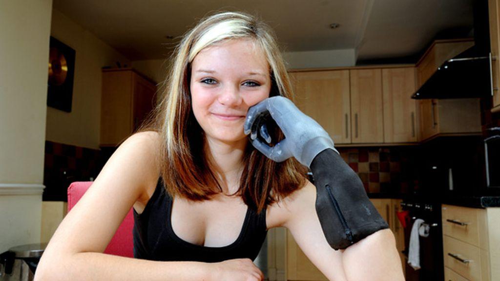 Chloe, una niña de Reino Unido que le han implantado una mano biónica. Foto: GTRES