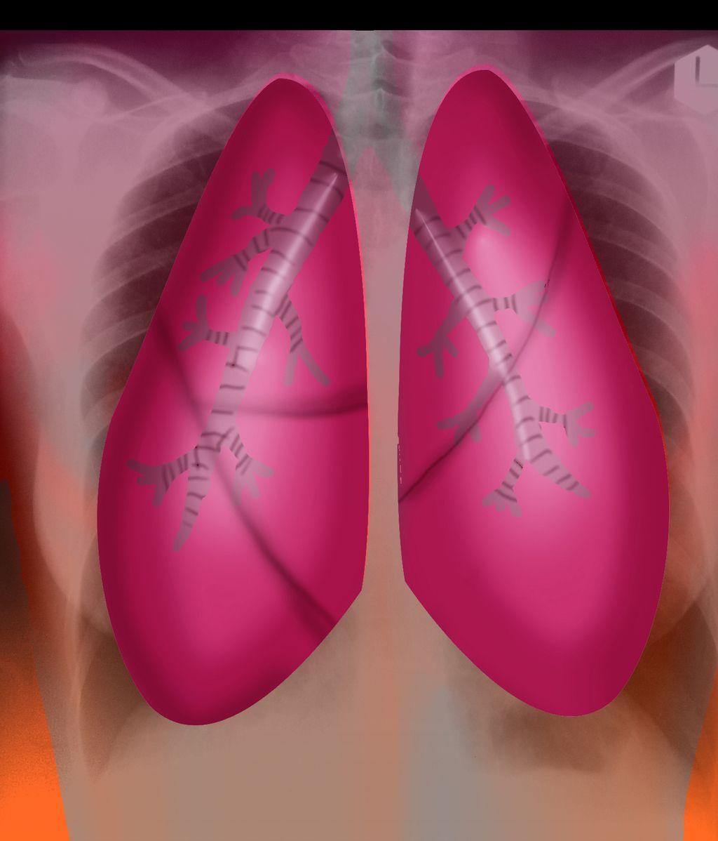 Pulmones.