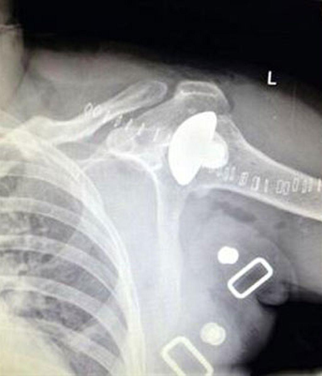 implante de menisco,intervención quirúrgica en Tenerife,trasplante de menisco,donante muerto