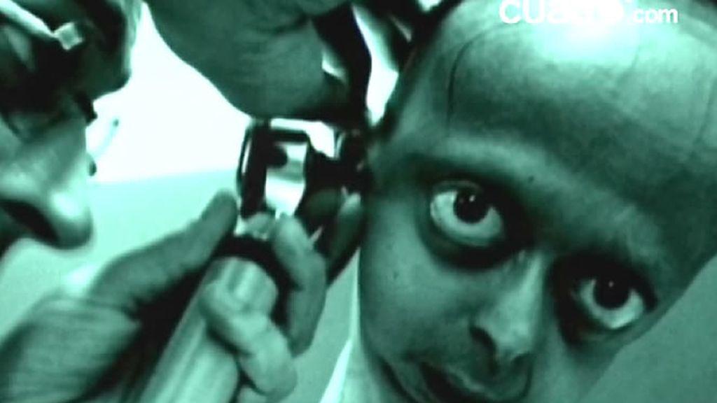 La progeria es una extrañísima enfermedad de la que sólo se conocen 42 casos en todo el mundo