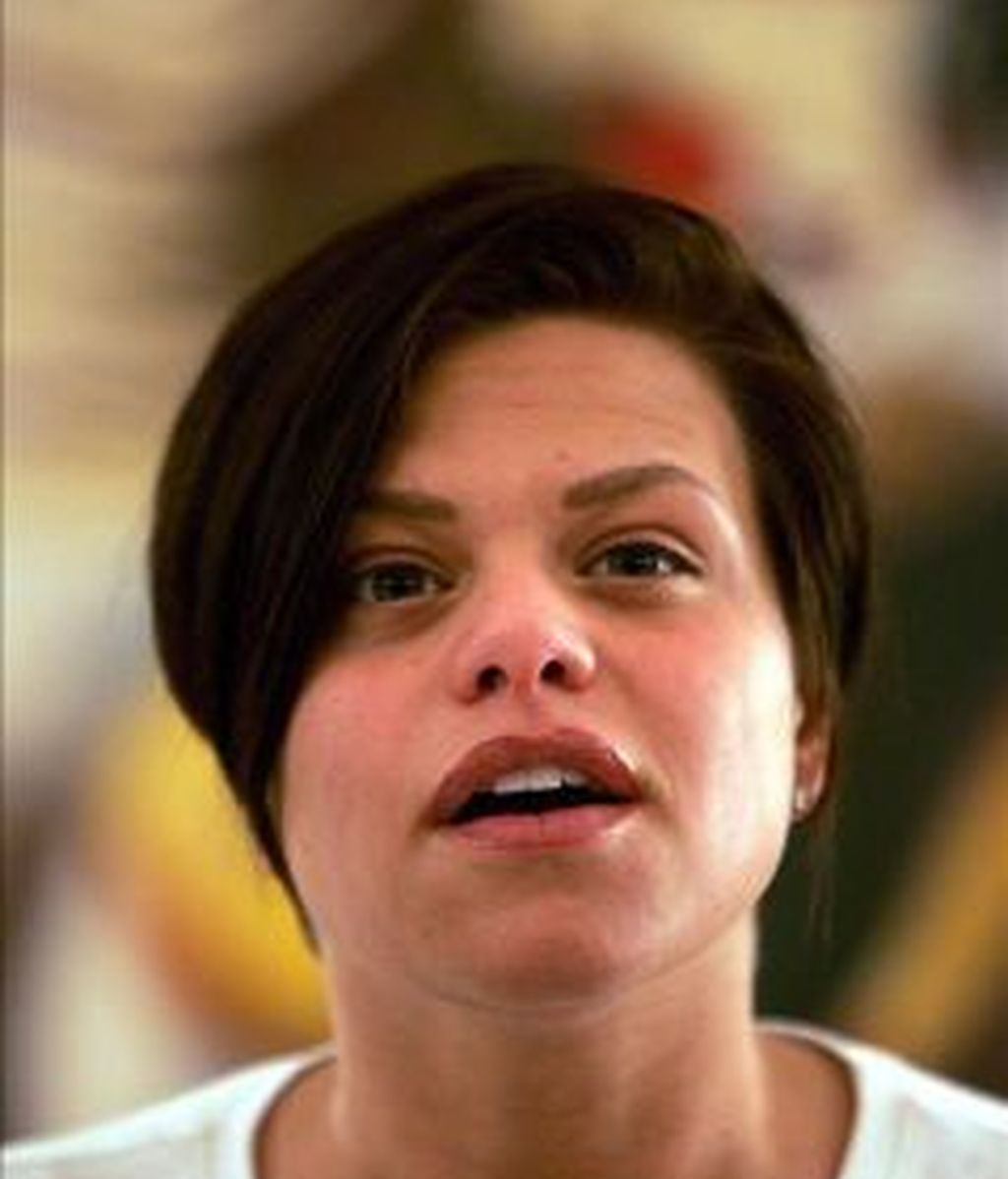 Imagen de archivo de Jade antes de enfermar. Foto: EFE