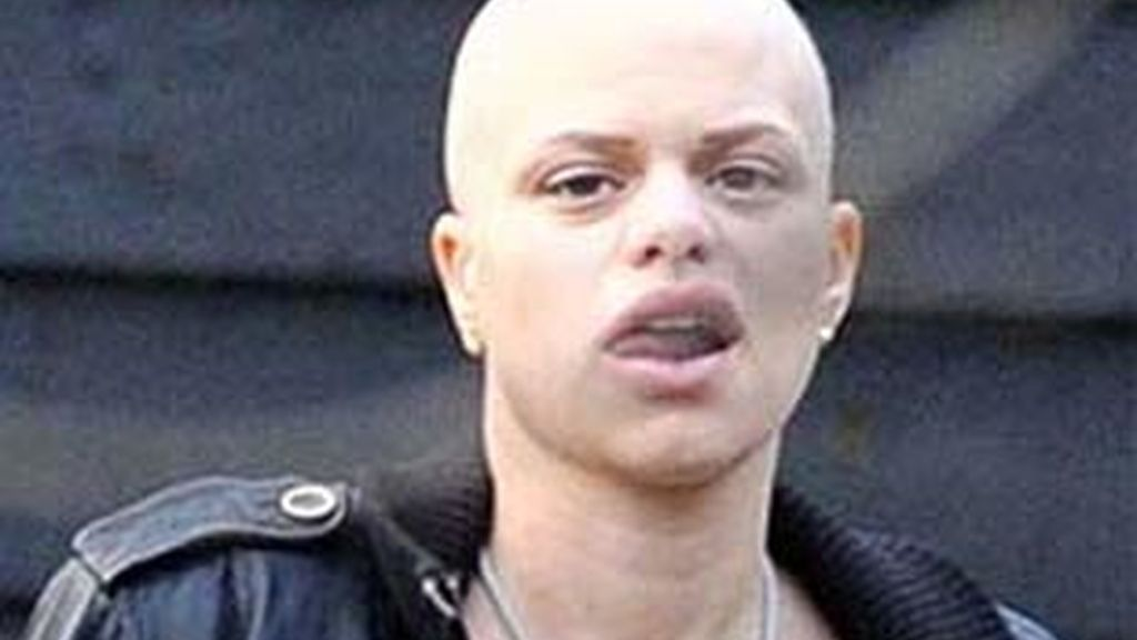 Jade Goody, británica de 27 años, padece un cáncer cervical terminal. Foto: