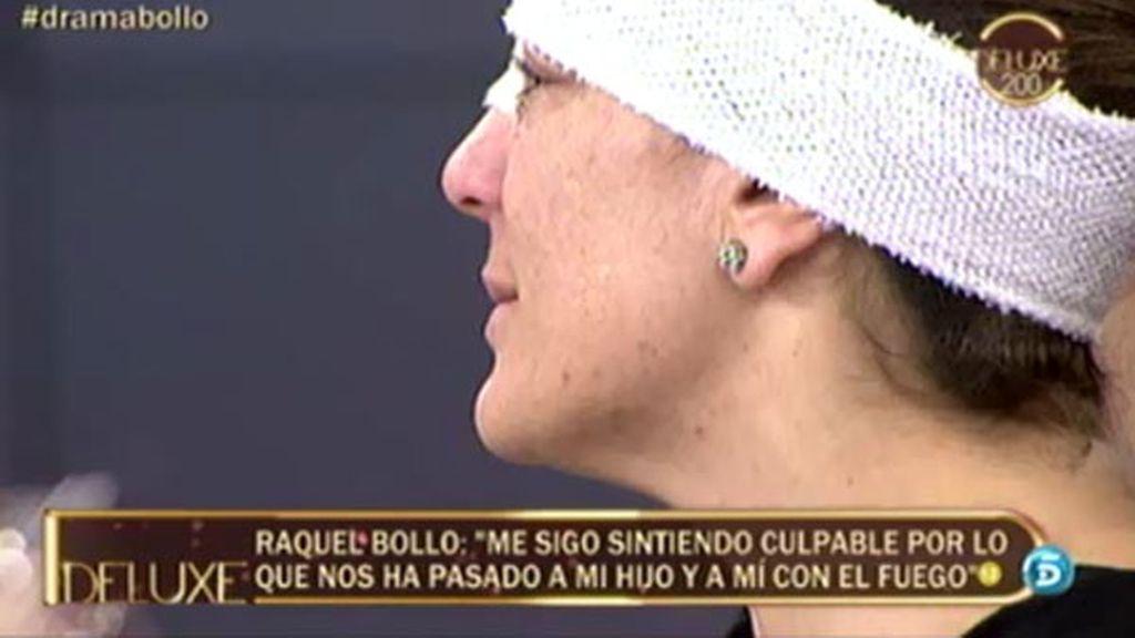 Las secuelas físicas de Raquel Bollo