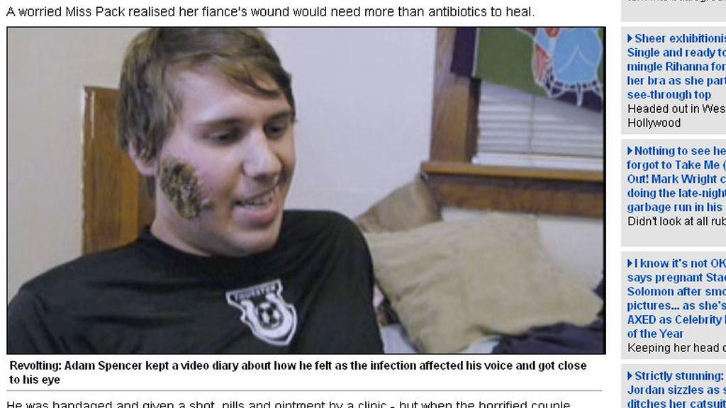 El parásito se comió el rostro de Adam