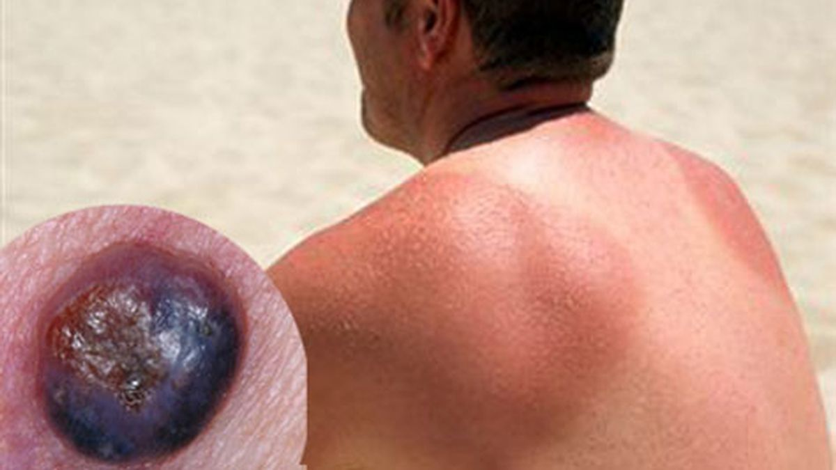 cáncer de piel,tipo agresivo de cáncer de piel,melanoma nodular,dermatólogos,Australia