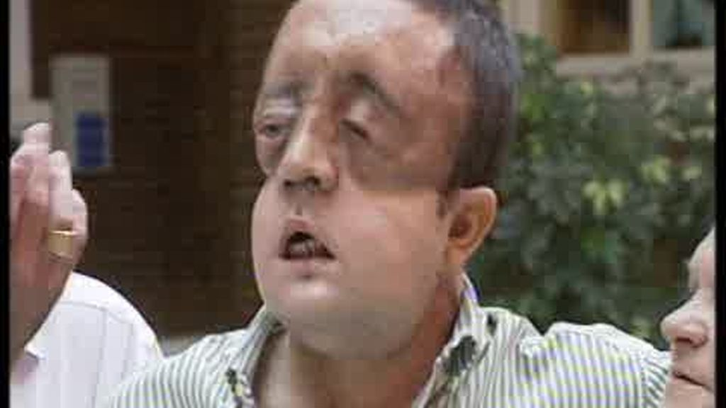 Rafael, feliz tras recibir un transplante de cara