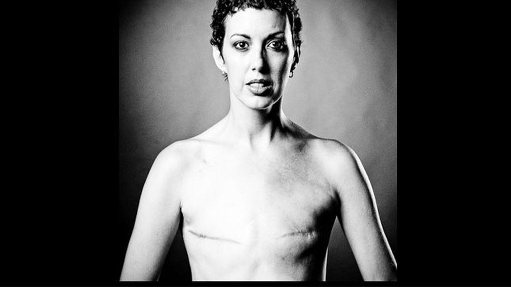La fotos de supervivientes del cáncer de mama que Facebook no quiere mostrar