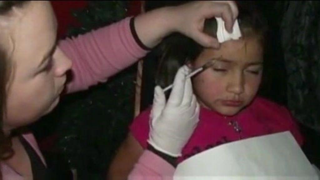 Sin su hija por inyectarle botox