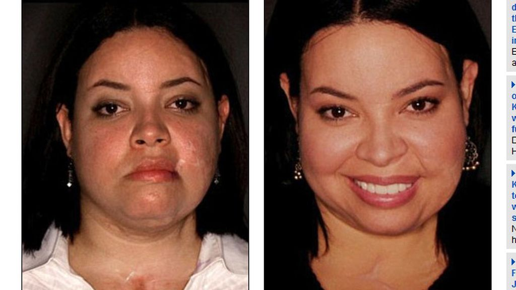 Recupera su cara tras ser apuñalada más de cien veces