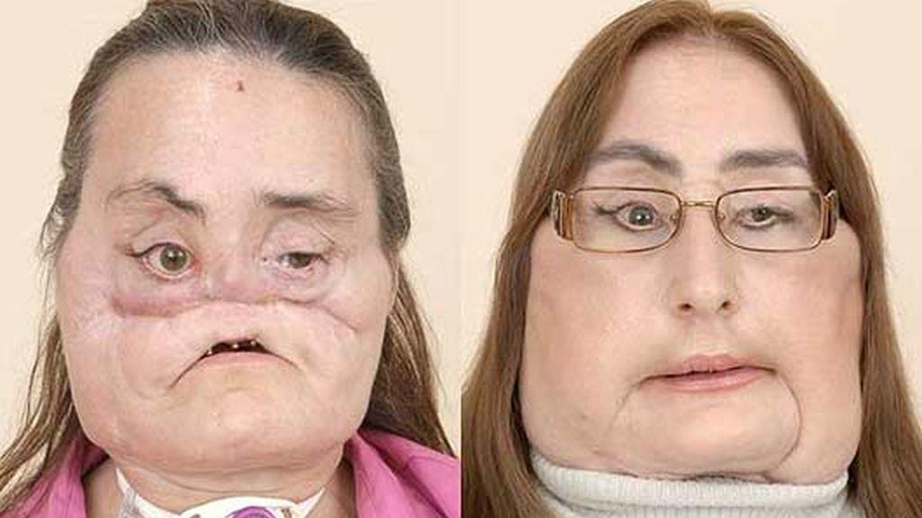 A Connie Culp le han trasplantado el 80% de su cara. Vídeo: Informativos Telecinco