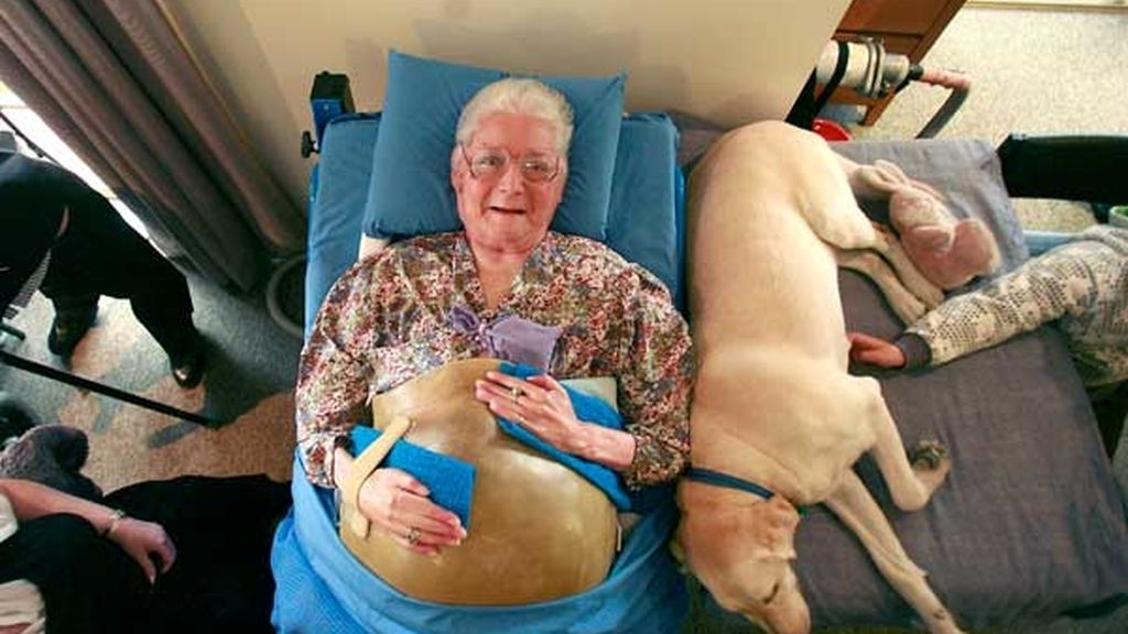 60 aniversario de su operación de pulmón