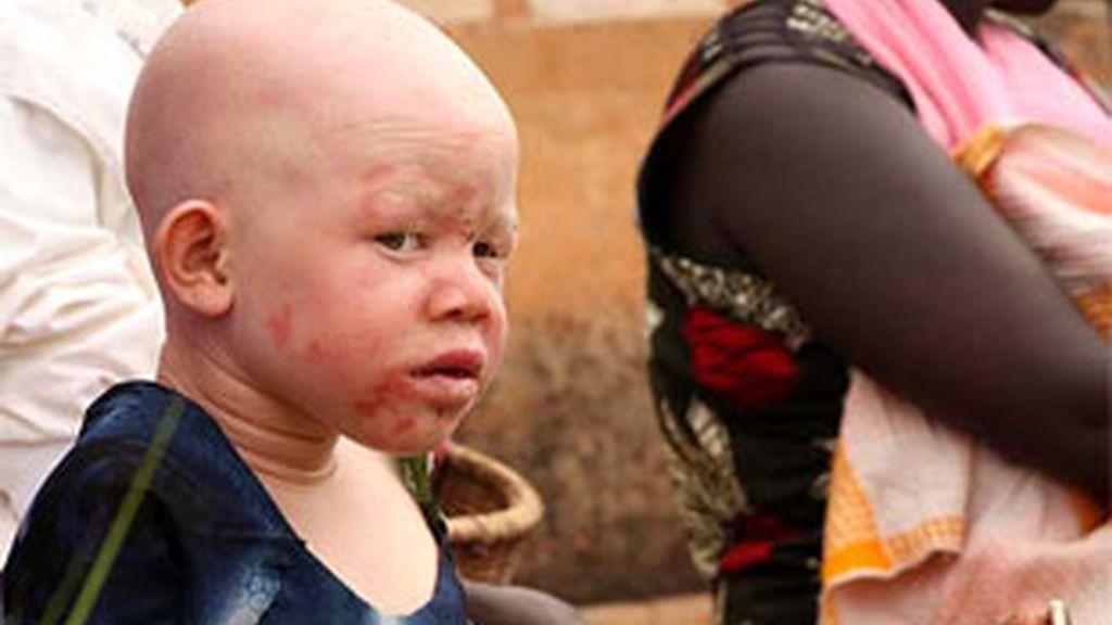 Un niño negro africano albino.