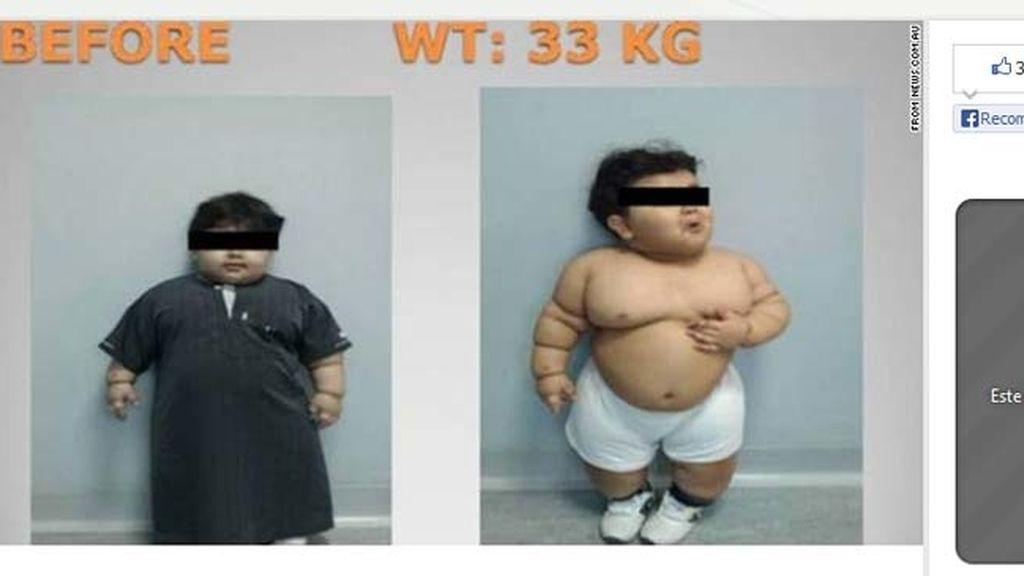 Operan a un niño para bajar peso