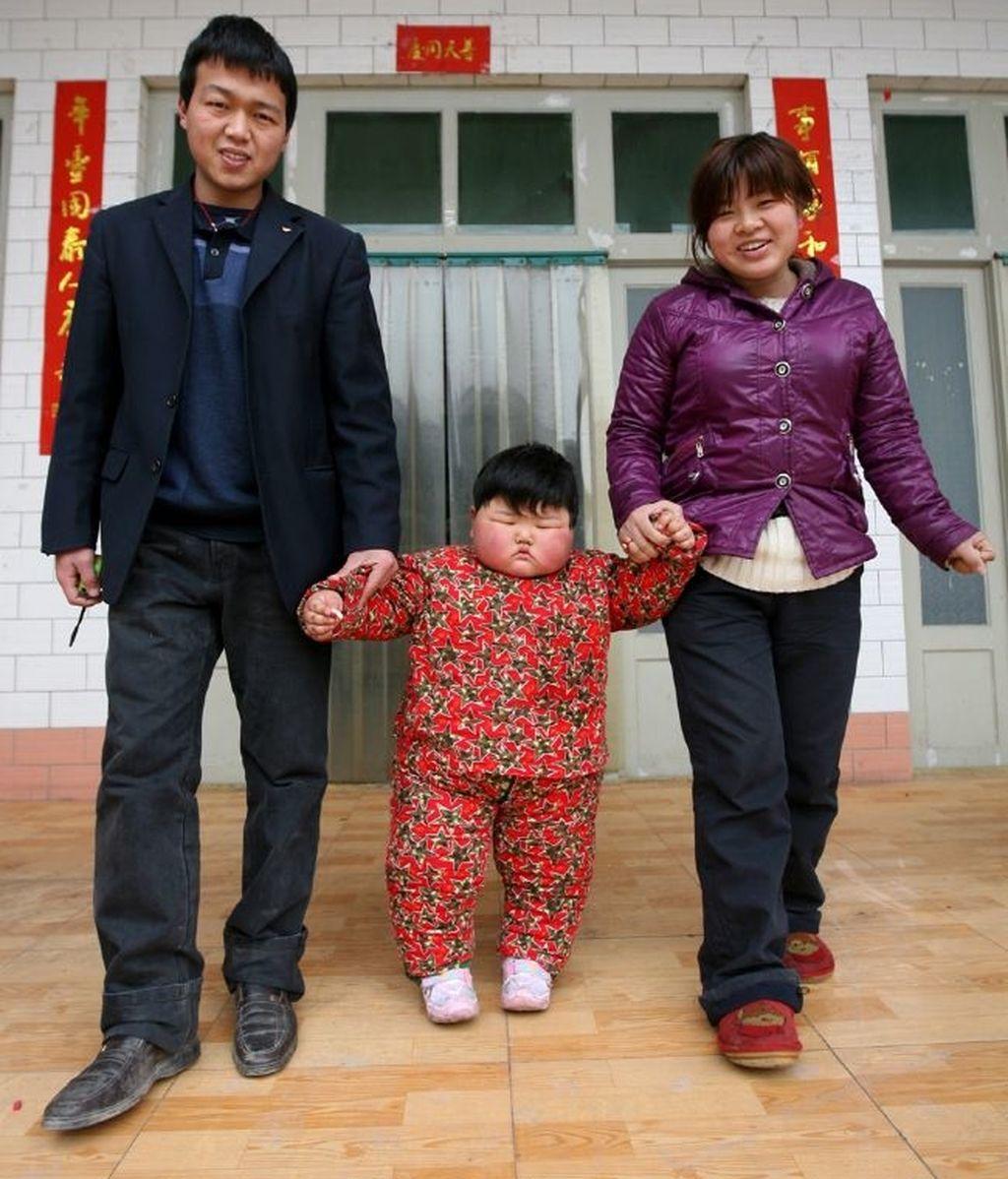 Pan Ya tiene dos años y pesa 41 kilogramos