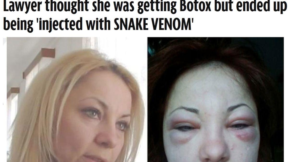 Le inyectan veneno de serpiente en una operación de Botox
