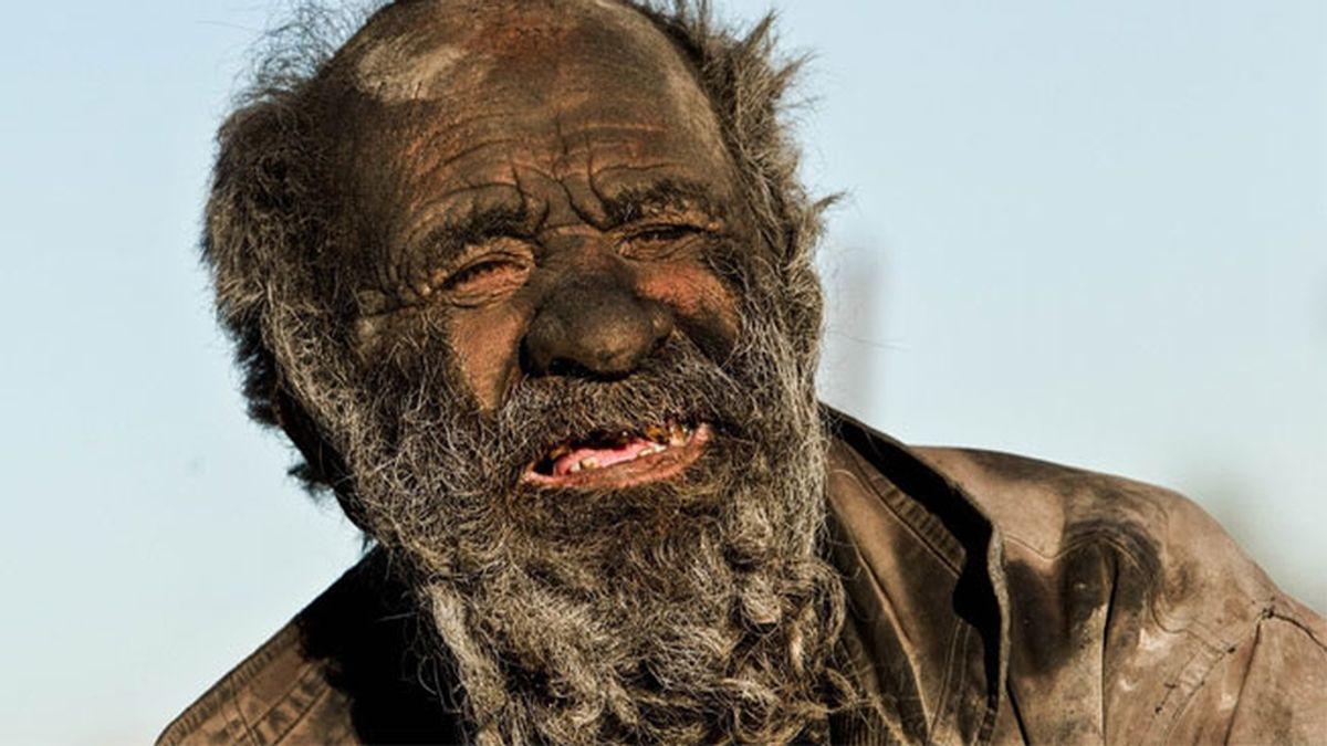 Un hombre iraní que lleva 60 años sin lavarse