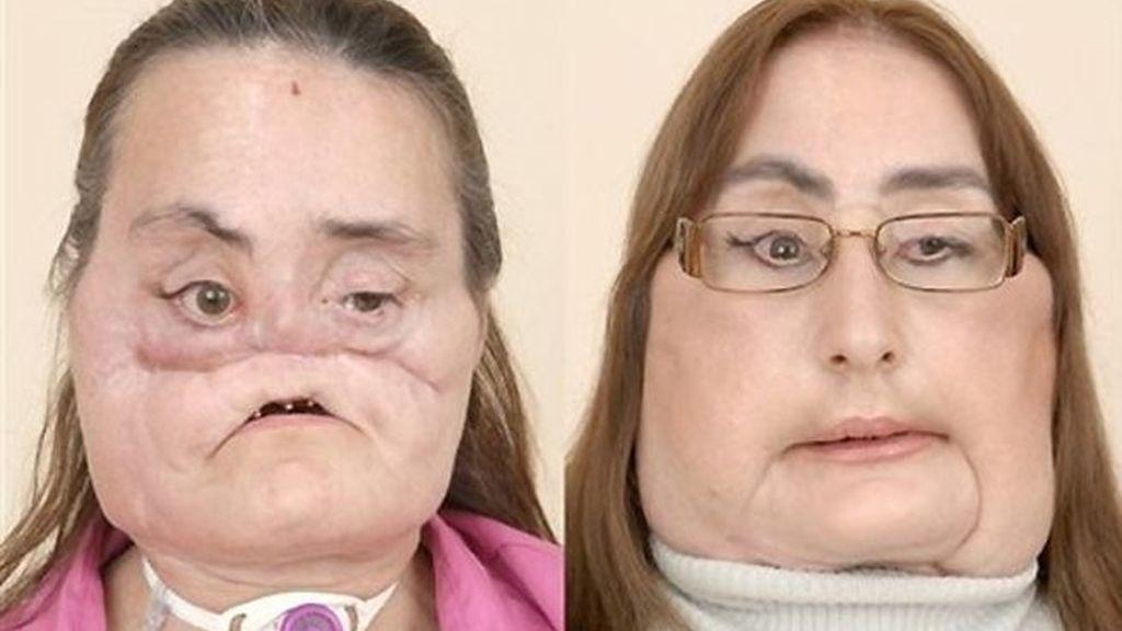 Connie Culp después de una treintena de operaciones ha vuelto a maquillarse a recomenzar su vida.