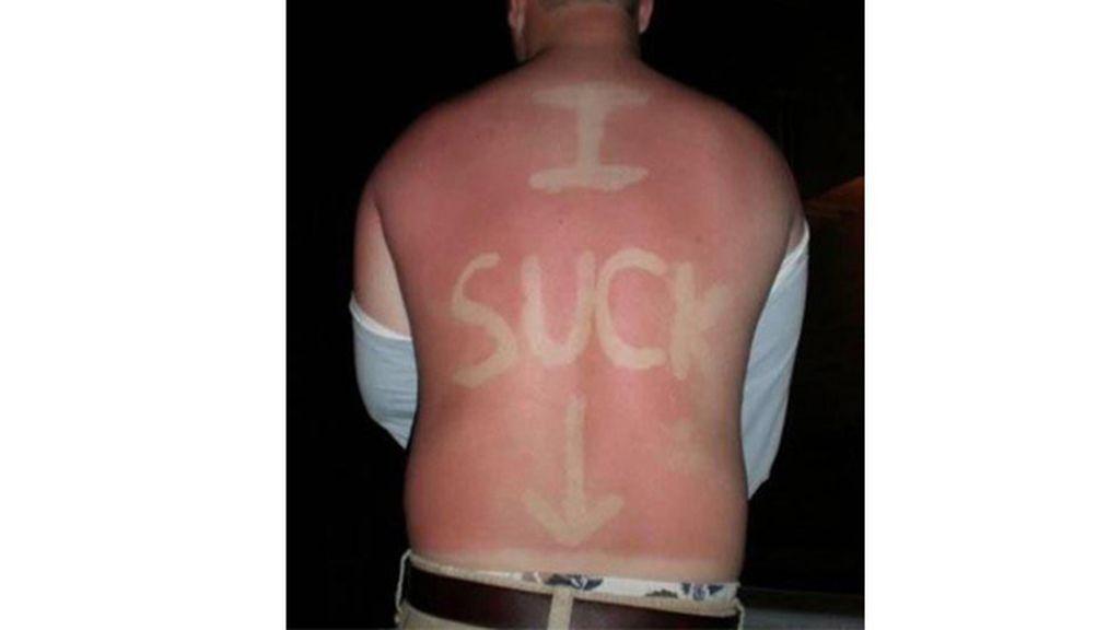 Sunburn Art, el arte de quemarse al sol