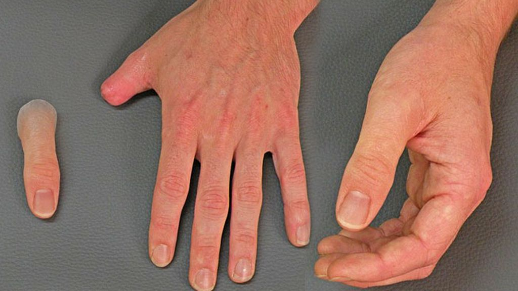 Las prótesis hiperreales de dedos creadas por una empresa alemana