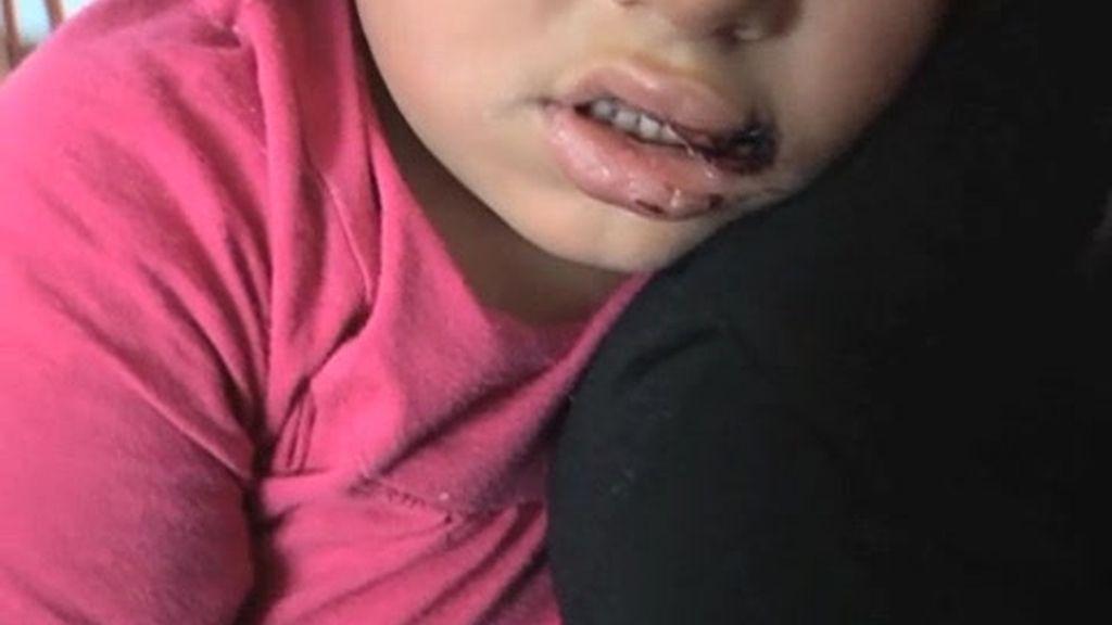 Un rotwailler muerde a una niña