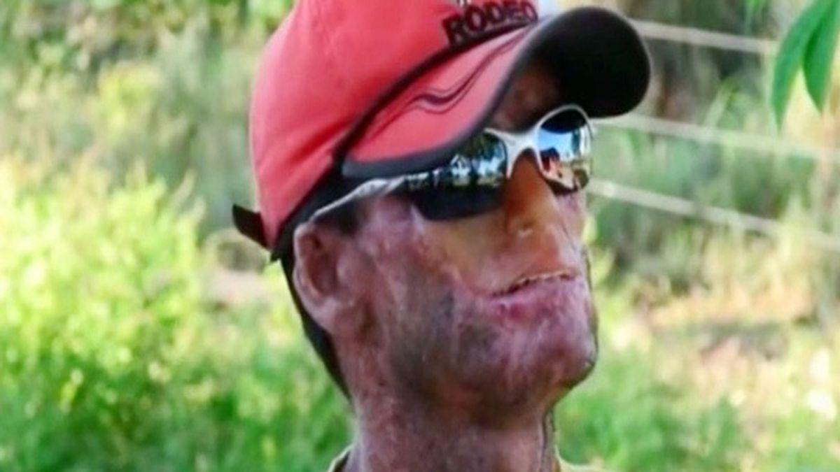 Una rara enfermedad 'derrite' la piel de los habitantes de un pueblo de Brasil