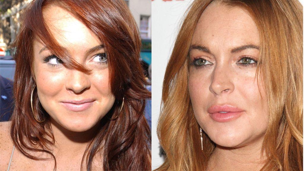 Lindsay Lohan (28) ha sido de las pocas en admitir que es adicta a los retoques