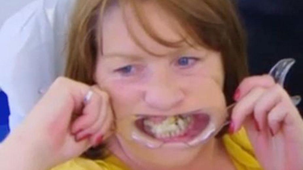 Se pega los dientes con pegamento por miedo al dentista