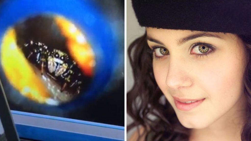 La cantante británica Katie Melua vivió con una araña en el oído durante una semana