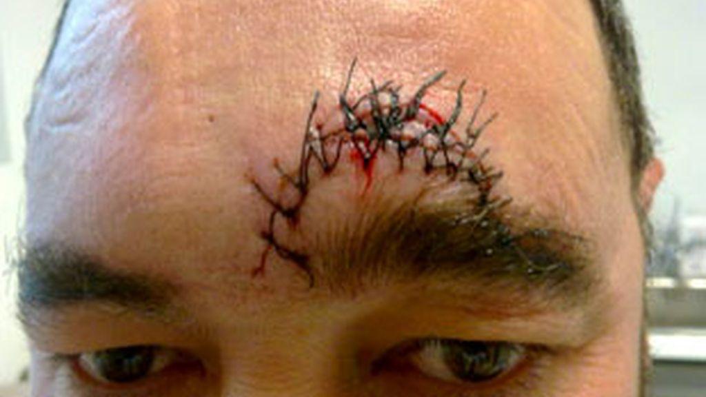 Juan Francisco Valhondo, dueño de un bar de la localidad cacereña de Montehermoso, muestra los 18 puntos de sutura en la cabeza recibidos tras ser agredido. Vídeo: Informativos Telecinco.