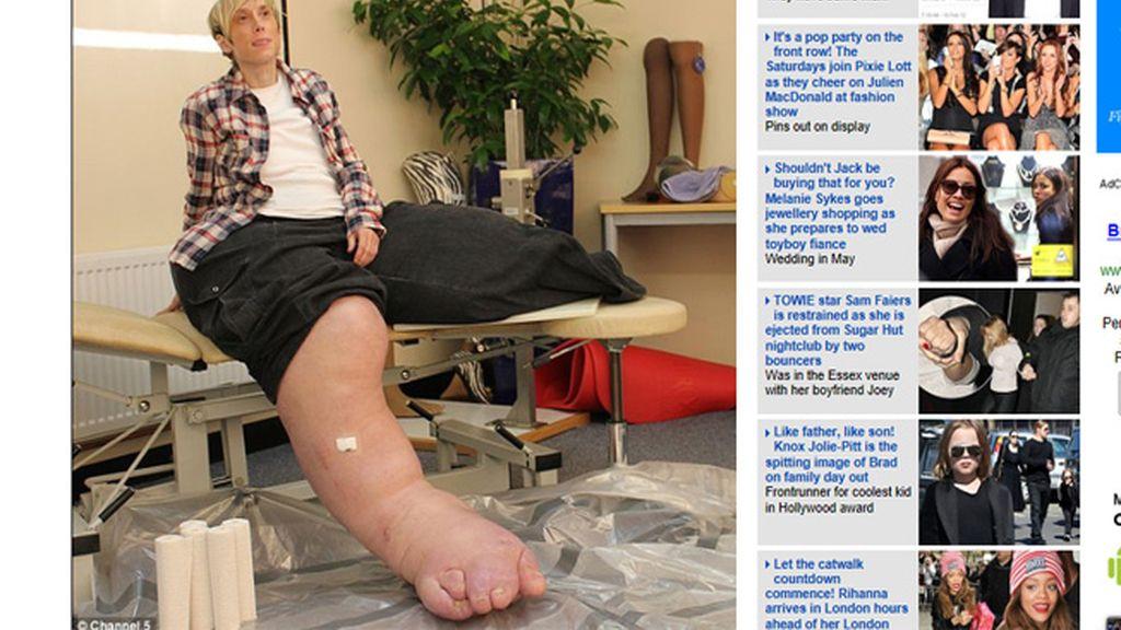 Mandy Sellars, la mujer con las piernas gigantescas
