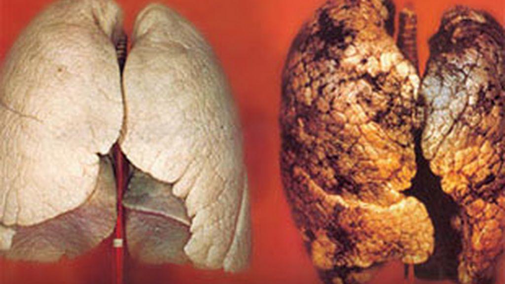 Una de las imágenes que se incluirán en las cajetillas de tabaco.