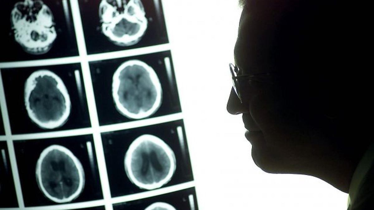 Médicos españoles diseñan la primera biopsia líquida para analizar tumores cerebrales