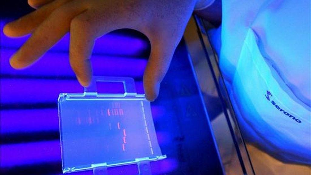 El estudio, publicado en la revista Proceedings of the National Academy of Sciences, ha analizado 4.849 casos de cáncer de próstata agresivo que se había diseminado y otros 12.205 en los que el crecimiento del tumor era lento. EFE/Archivo