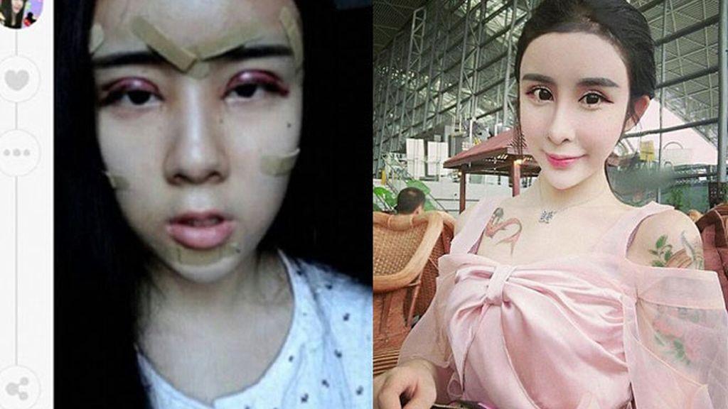 Lee Hee Danae, adolescente china, cirugía estética