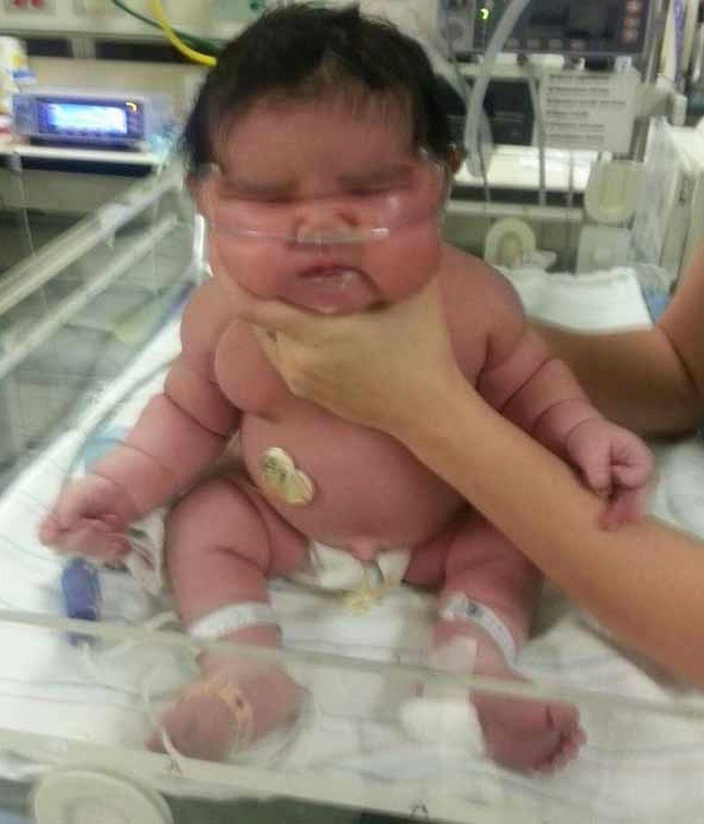 Nace una bebé de 6,2 kilos en un hospital de Estados Unidos