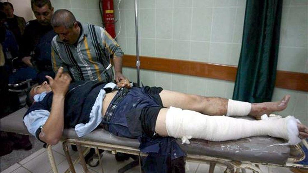 Un policía iraquí recibe atención médica en un hospital de Kirkuk, Irak, hoy tras resultar herido en un atendado bomba. El artefacto, colocado aun lado de la carretera, hizo explosión al paso de un control de policía. No ha habido víctimas mortales, pero ocho agentes reaultaron heridos. EFE