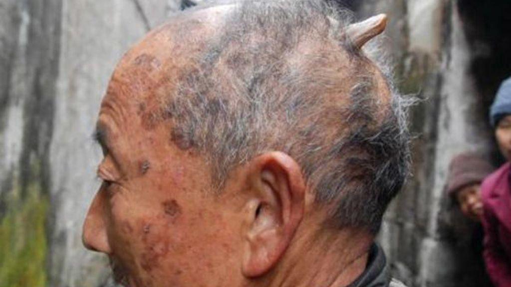 Un cuerno en la parte trasera de la cabeza le ha crecido a este hombre chino de 84 años. Foto: Iberpress