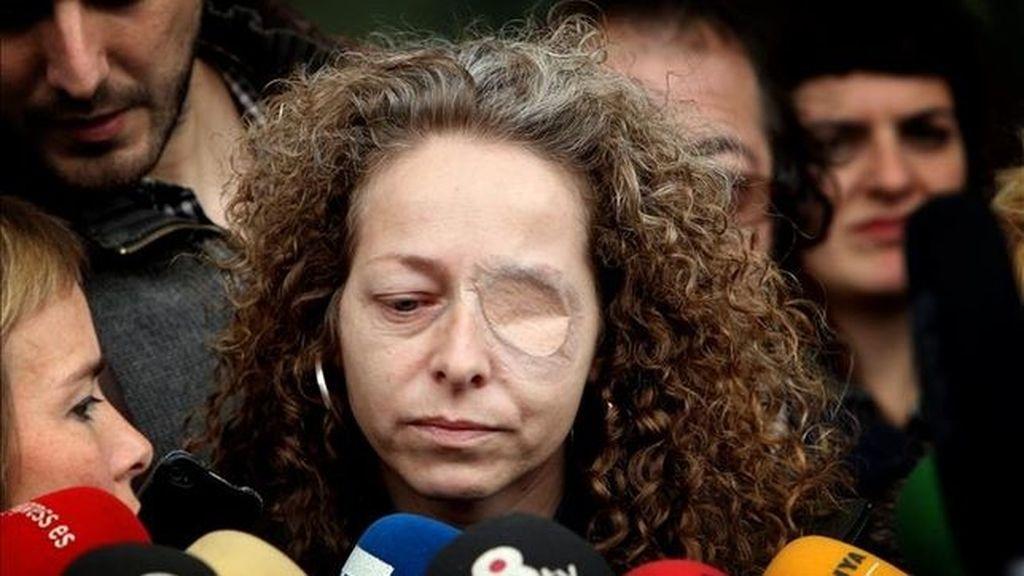 Ester Quintana, perdió un ojo durante la huelga general del 2012