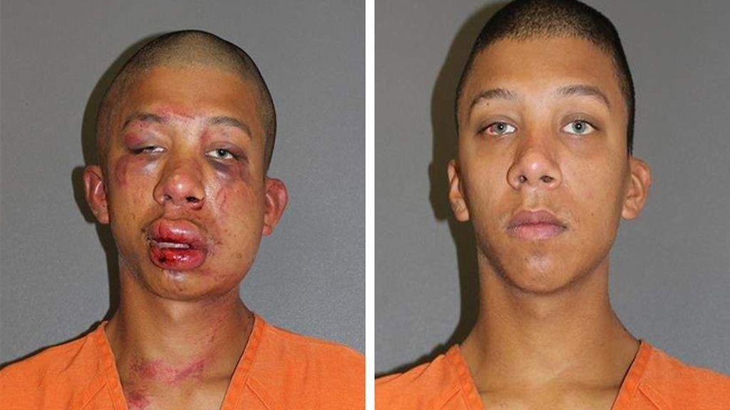 Un padre destroza la cara a un joven que abusó sexualmente de su hijo de 11 años