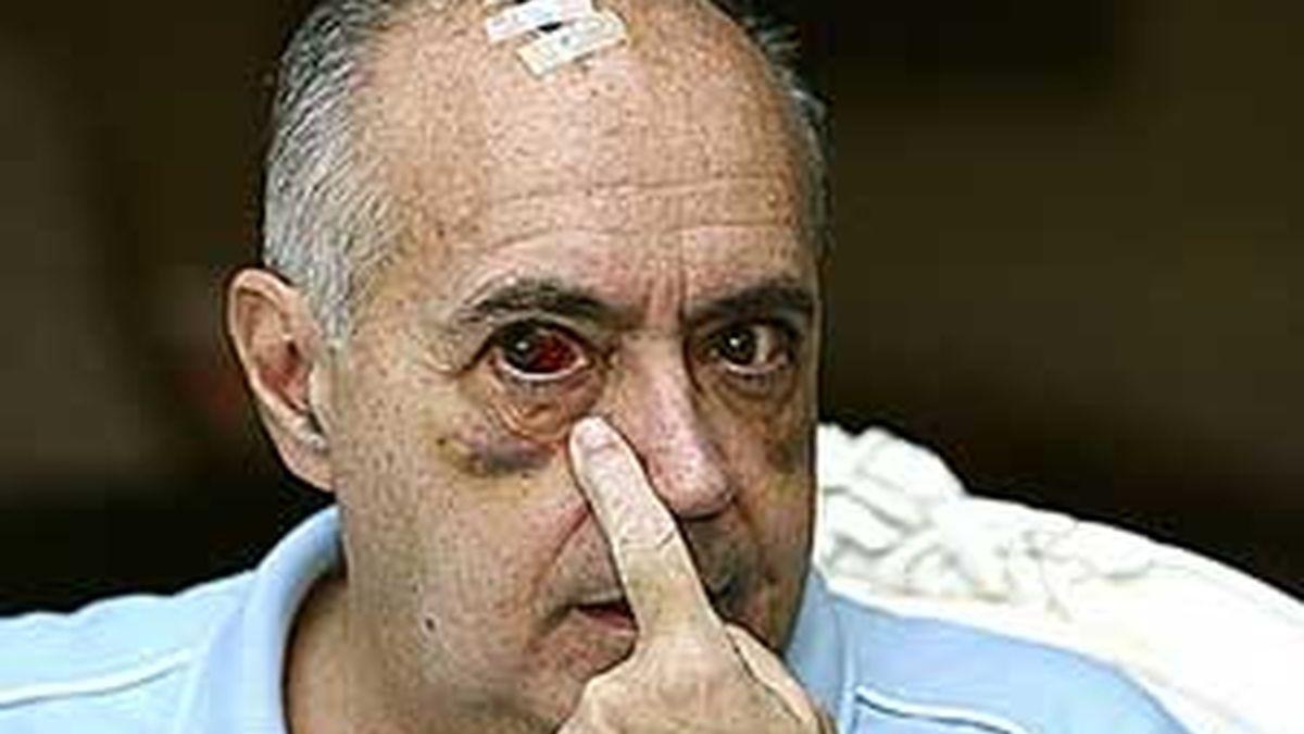 José Luis Moreno muestra sus lesiones tras la agresión.