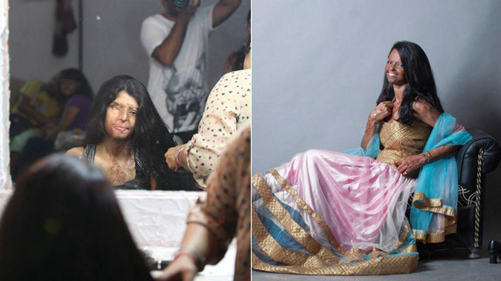 Mujeres desfiguradas por ataques con ácido se convierten en modelos