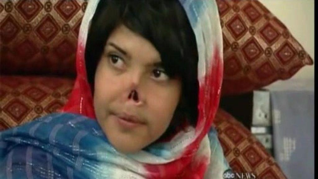 Nariz Afgana à Nueva vida, nueva nariz