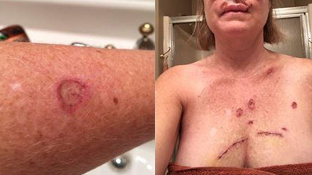 La lucha contra el cáncer de piel en imágenes