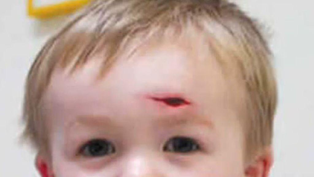 Síndrome Riley-Day