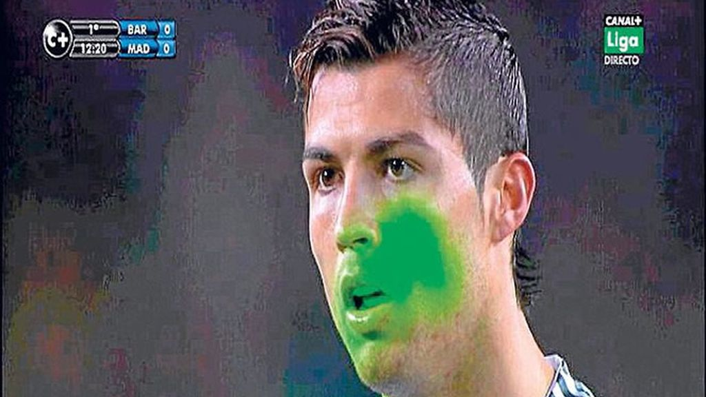 Cristiano Ronaldo láser