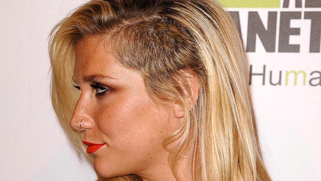 Kesha, con rapado lateral rubio