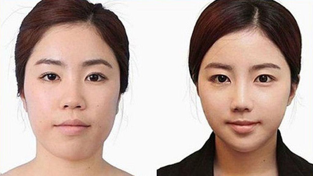 Cirugía plástica con resultados sorprendentes