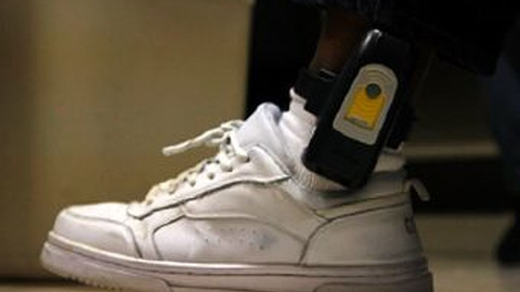 Le ponen el brazalete electrónico en una prótesis