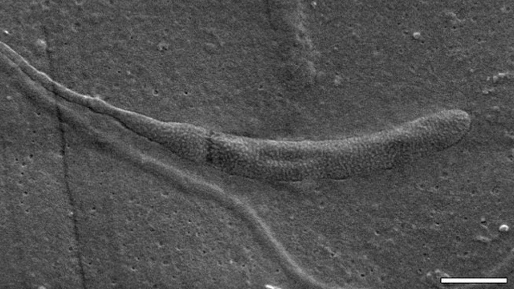 esperamatozoides,esperma,capullo de gusano,Benjamin Bomfleur,Museo de historia natural Suecia
